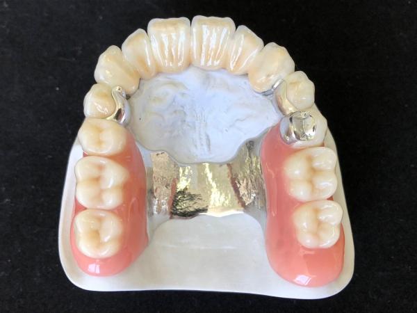 Geschiebeprothese mit Keramikfrontzahnbrücke Modell FZ01