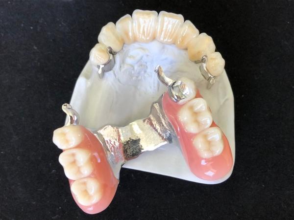 Geschiebeprothese mit Keramikfrontzahnbrücke Modell FZ04