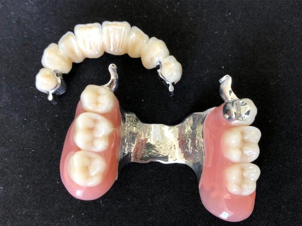 Geschiebeprothese mit Keramikfrontzahnbrücke Modell FZ05