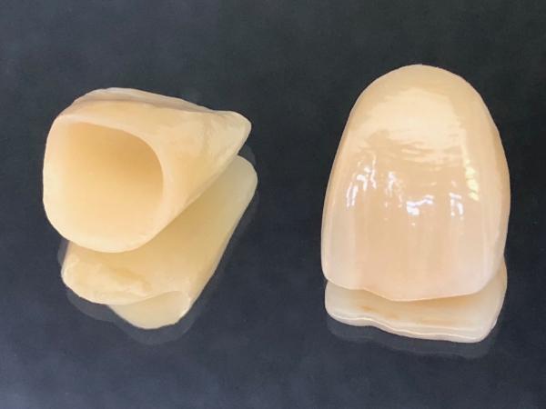 Vollkeramikkronen e-max Modell 2